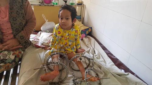 မွေးရာပါ ခြေထောက်ခွင်နေတဲ့ ကလေးလေးကို ထောက်ပံ့ပေးခဲ့တဲ့ ဝေဠုကျော် ဖောင်ဒေးရှင်း